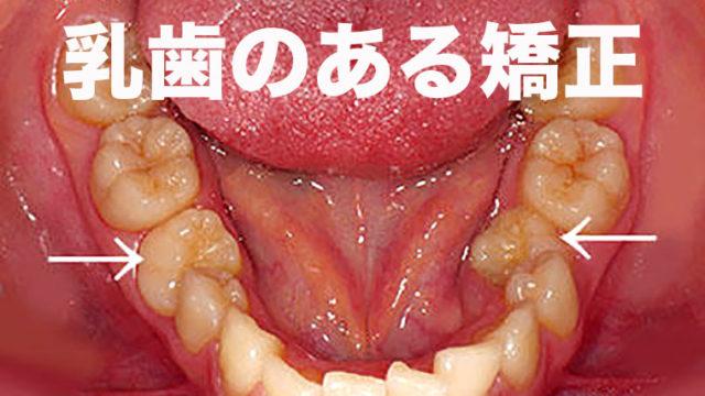 乳歯のある歯列矯正