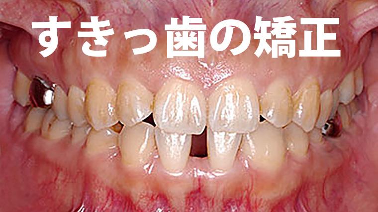下の前歯のすきっ歯の歯列矯正