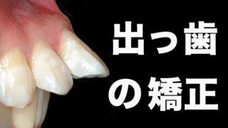 出っ歯の歯列矯正