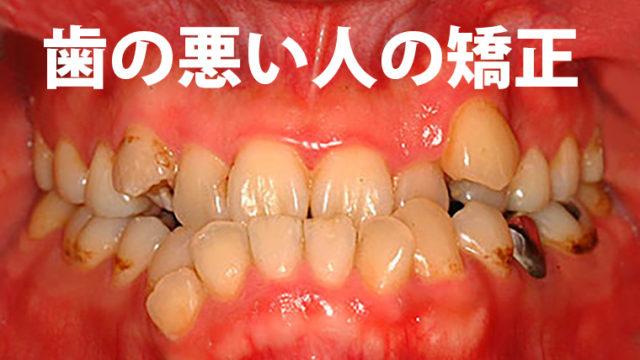 myupa 歯が悪い人の歯列矯正