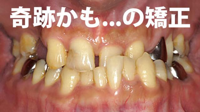 奇跡の歯列矯正