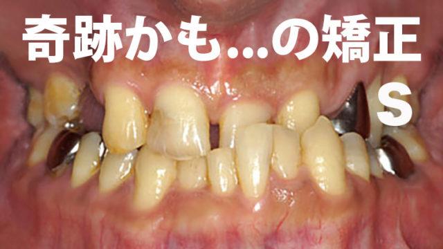 奇跡の歯科治療2