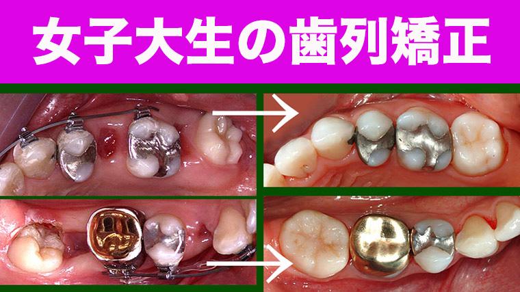 親知らずの移動の歯列矯正