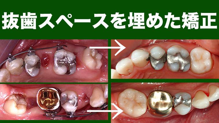 奥歯を抜歯しスペースを埋めた歯列矯正