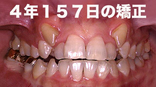 チーボウの歯列矯正
