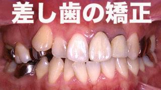 差し歯の矯正
