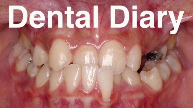 うけくち,八重歯,ガチャ歯,乳歯あり,歯列矯正,ブレース,歯科矯正,矯正歯科,矯正女子
