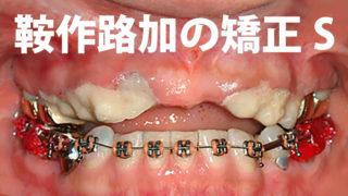 鞍作路加の歯列矯正