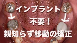インプラント不要の歯列矯正