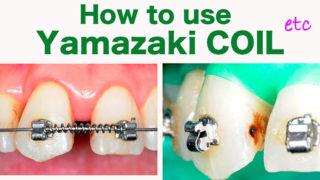 歯列矯正中にヤマザキ発条を使った虫歯治療