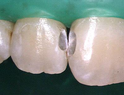 前歯のレジン