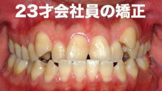 八重歯で受け口の歯列矯正