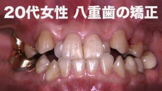 八重歯 矯正女子